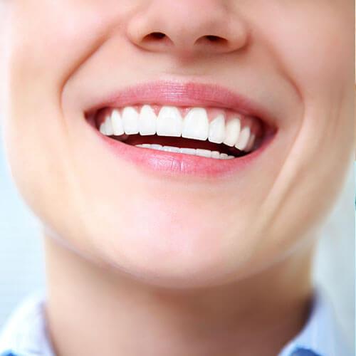 Beautifully white teeth after receiving teeth whitening dental services