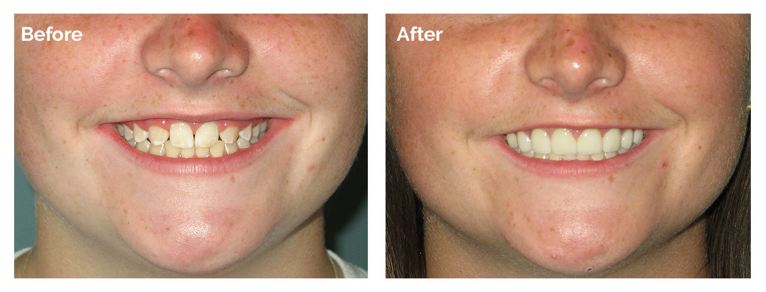 Before and after of one of patients who is in our Woburn Smile Gallery