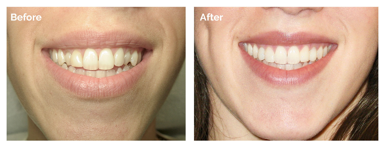 Woburn Smile Gallery - Patient's teeth