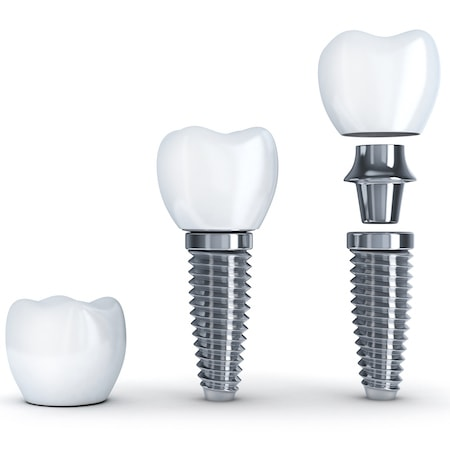 Graphic showing the different components of Woburn dental implants