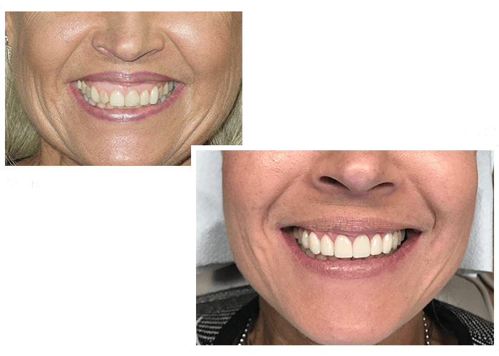 Before and after a patient visited our Woburn dentist