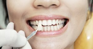 A tooth color shade held up to a woman's smile