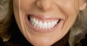 Woman smiling showing health teeth and gums
